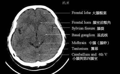 Frontal lobe anatomy mri